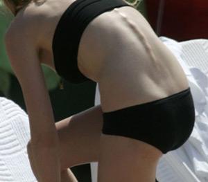 Kirsten Dunst bikini